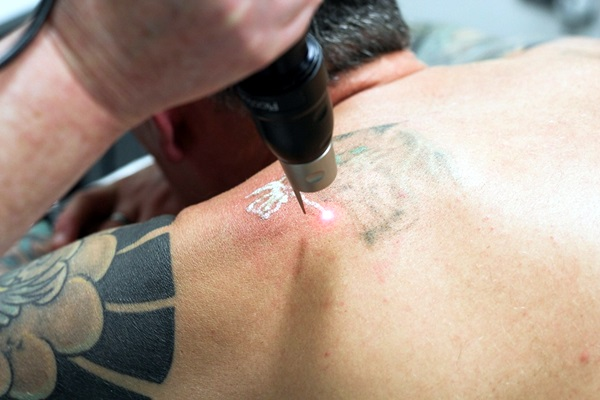 Tips for a Fast Recovery after Laser Tattoo Removal (10)