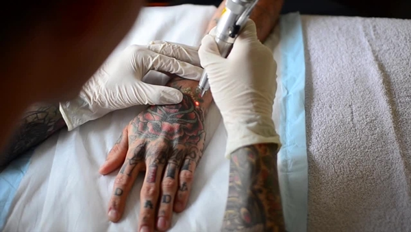 Why People choose to Remove Tattoo